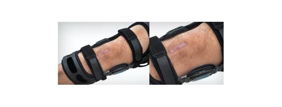 Inmovilizadores de piernas