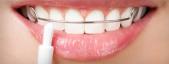 Orthodontic brushes