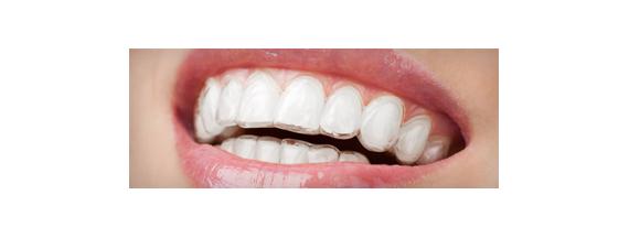 Proteção oral