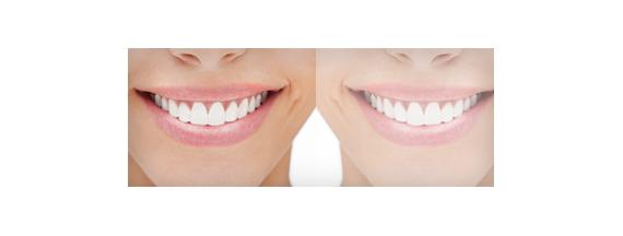 Xerostomía o boca seca