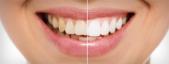 Branqueadores dentais